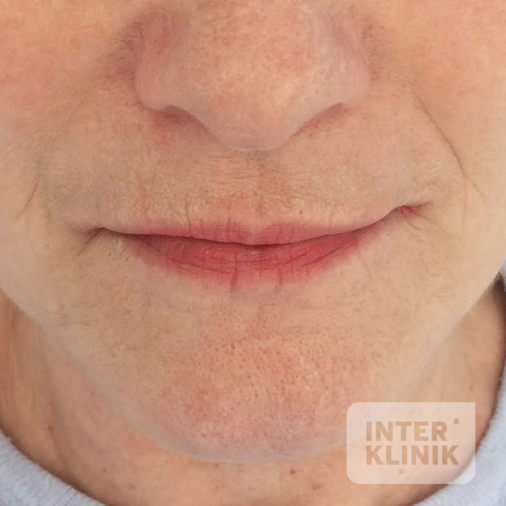 INK-derma-pery-3-PRED-1024x1024-min